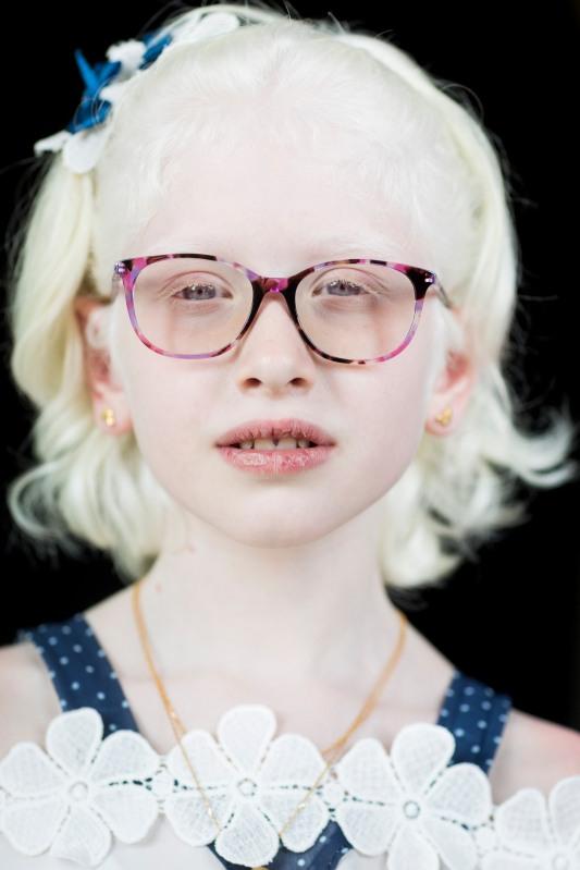 Melek 2019. Mit der speziellen Brille, die Timman ihr in den Irak brachte, kann Melek Licht wieder besser vertragen. © Ruben Timman